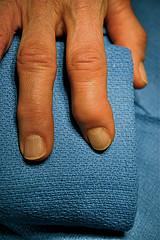 swollen finger osteoarthritis
