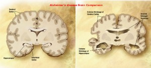 Alzheimer's disease and how vitamin D helps to fight the condition