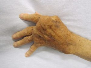320px-Rheumatoid_Arthritis.jpg