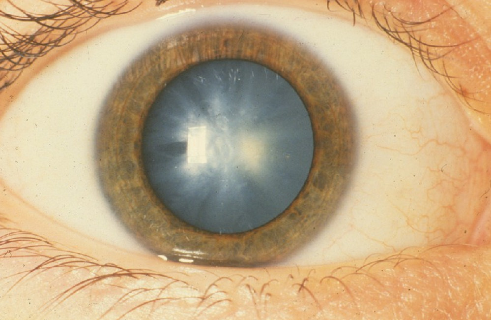 Nutrients and Antioxidants Can Help Control Cataracts