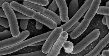 Nearly 80% of Our Immune System Is Located In The Gut
