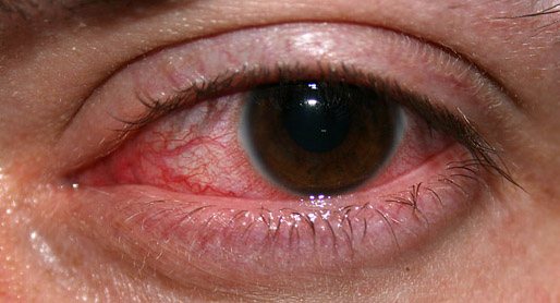 Information About Optic Nerve Inflammation